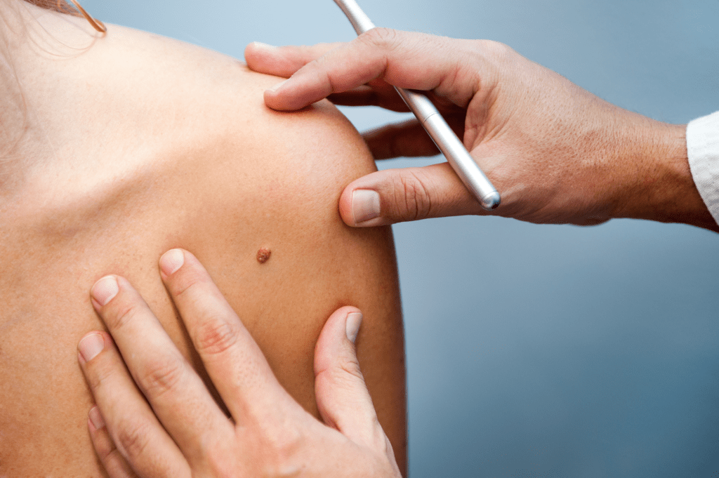 signs of melanoma